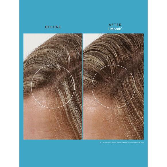 Scalp Care Revitalizing Treatment, , large, image3