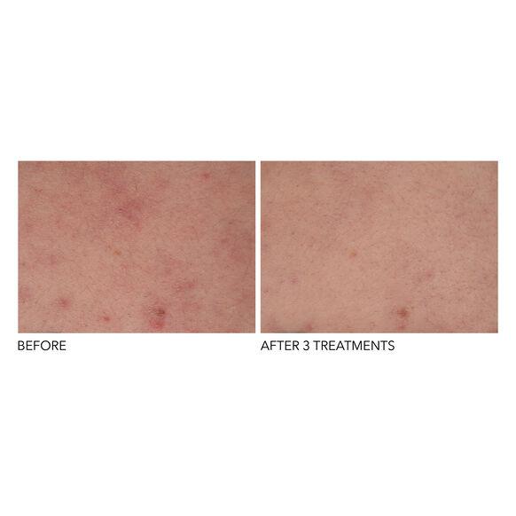 Alpha Beta Exfoliating Body Treatment, , large, image4